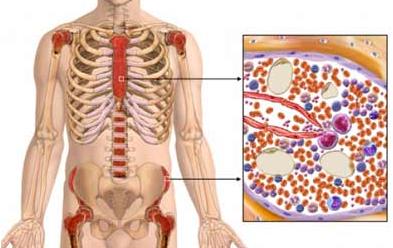 Aplastična anemija