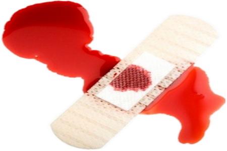 Slikovni rezultat za krvarenje