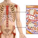 aplasticna-anemija